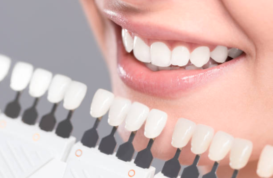 A preview of different levels of teeth whitening
